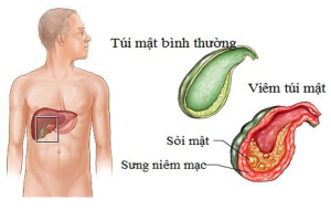benh-viem-tui-mat-co-nguy-hiem-khong-dieu-tri-viem-tui-mat-nhu-the-nao